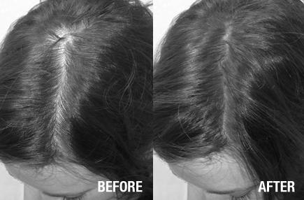 Carmen disimula la alopecia con Fibras capilares Nanogen