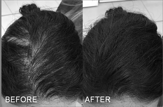 Dayna disimula la alopecia con Fibras capilares para muejeres