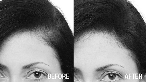 Isabel disimula la alopecia con Fibras capilares para muejeres