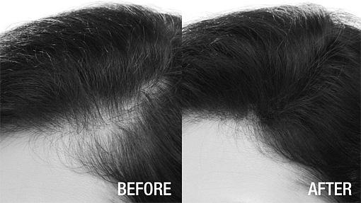 Sue disimula la alopecia con Fibras capilares Nanogen