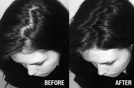 Carolina disimula la alopecia con Fibras capilares para muejeres