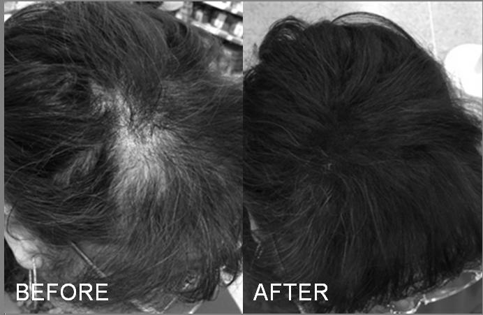 Linda disimula la alopecia con Fibras capilares para muejeres