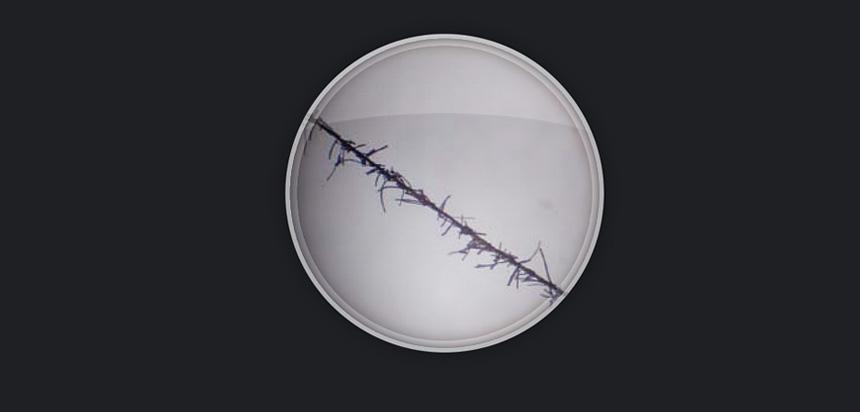 Micro fibras capilares electroestática